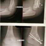 次男、上腕骨外顆骨折により緊急入院・手術
